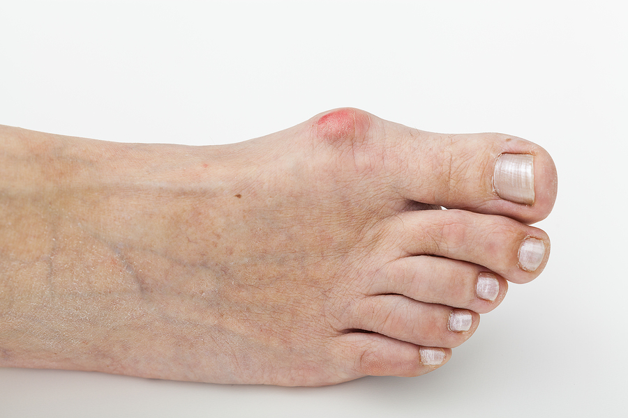 bigstock-Bunion-Isolated-Background-49248116