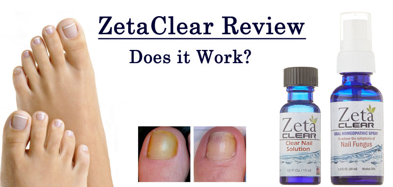 toenail fungus review